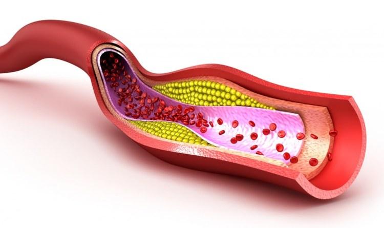 colesterol-malo remedio casero
