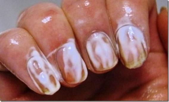 limnoiar uñas con pasta dental
