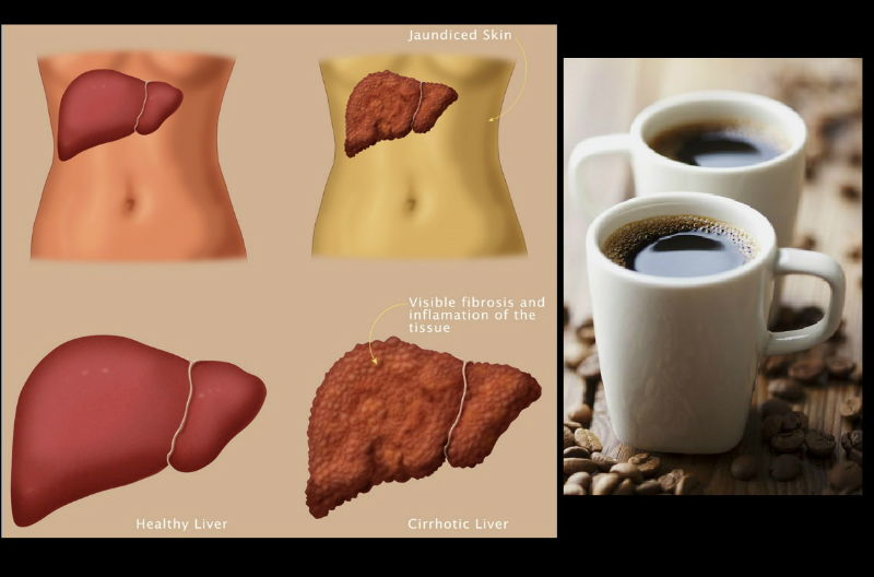 cirrosis hepatica y cafe