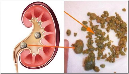 El problema de los ovarios cuando duele los riñones