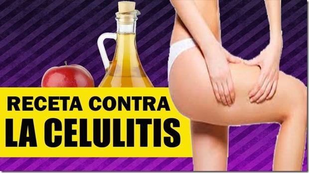 CELUTITIS REMEDIO CASERO