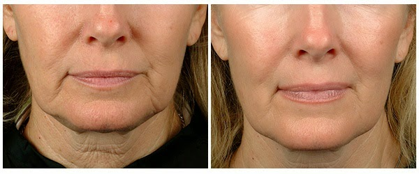 flacidez piel rostro