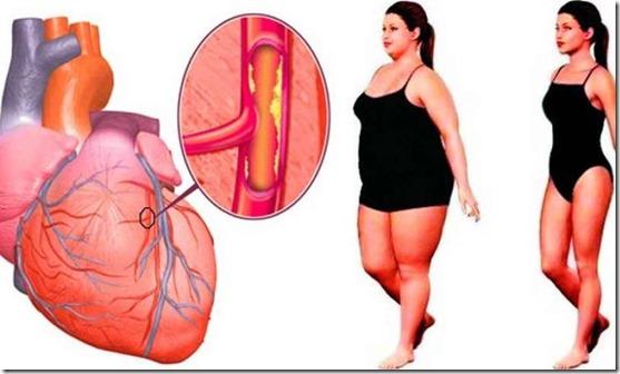 obesidad-arterias-tapadas